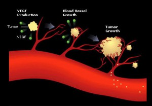 angiogenesis-oncology-6590365-454-3171