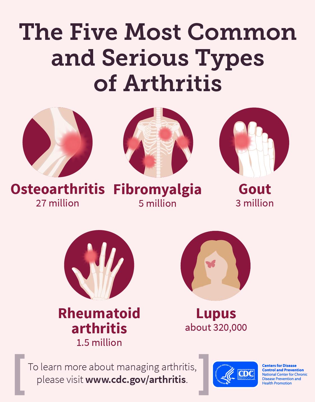 Fibromyalgia and Arthritis