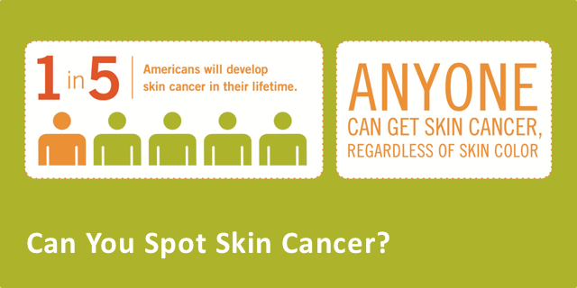 Can You Spot Skin Cancer? [Infographic]