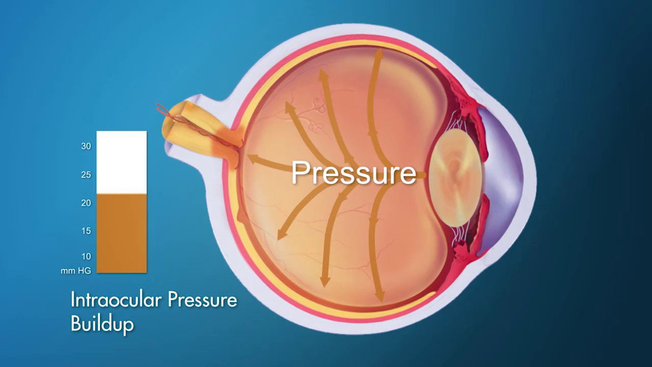 What causes high eye pressure?