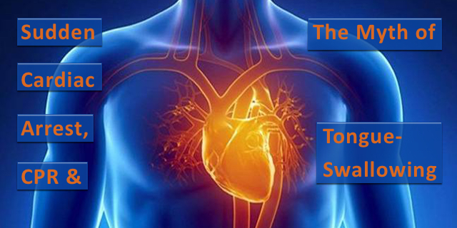 Rescue During Sudden Cardiac Arrest and the Myth of Tongue-Swallowing