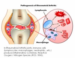 rheumatoid disease
