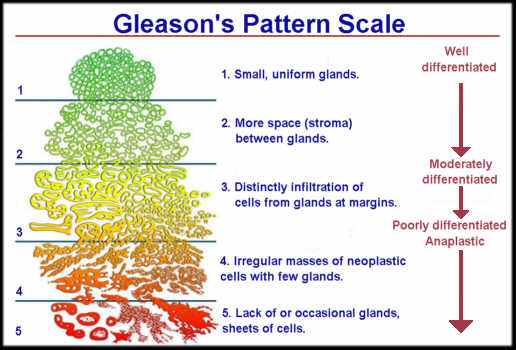 prostate cancer gleason 6)