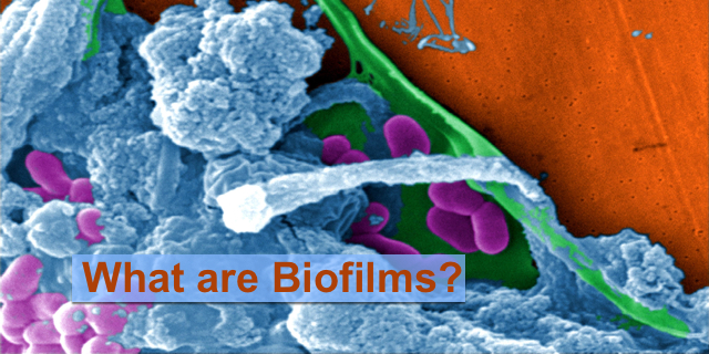 Biofilms? Sorry, not another name for nature movies