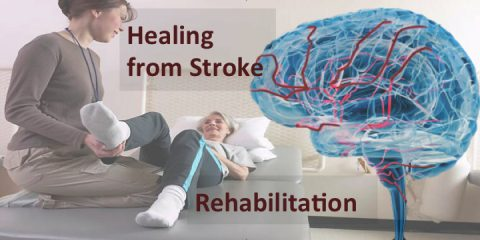 Life After Discharge With Stroke