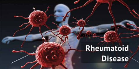 Staying Up-To-Date on Rheumatoid Disease