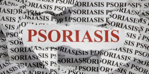 It's Not Contagious:  Psoriasis Awareness Month