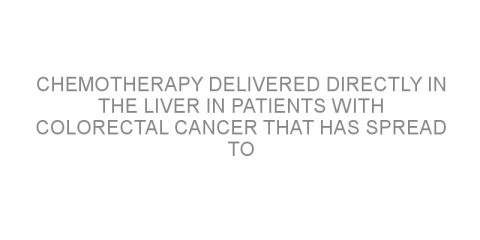 Chemotherapy delivered directly in the liver in patients with colorectal cancer that has spread to the liver.